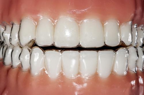 列 費用 歯 矯正