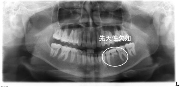 先天 性 永久歯 欠損
