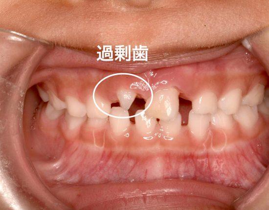 症候群 クレンチング TCH■NO.1噛みしめ症候群喰いしばり、噛みしめ、クレンチング